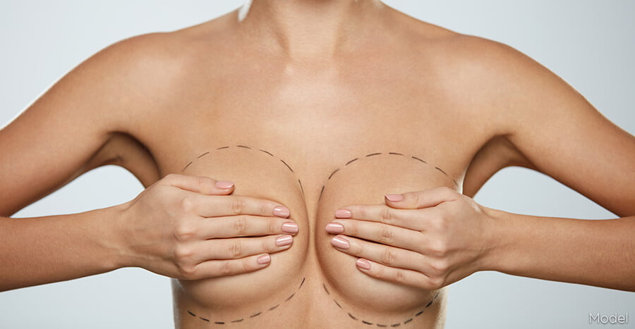 , Breast Implant Revision