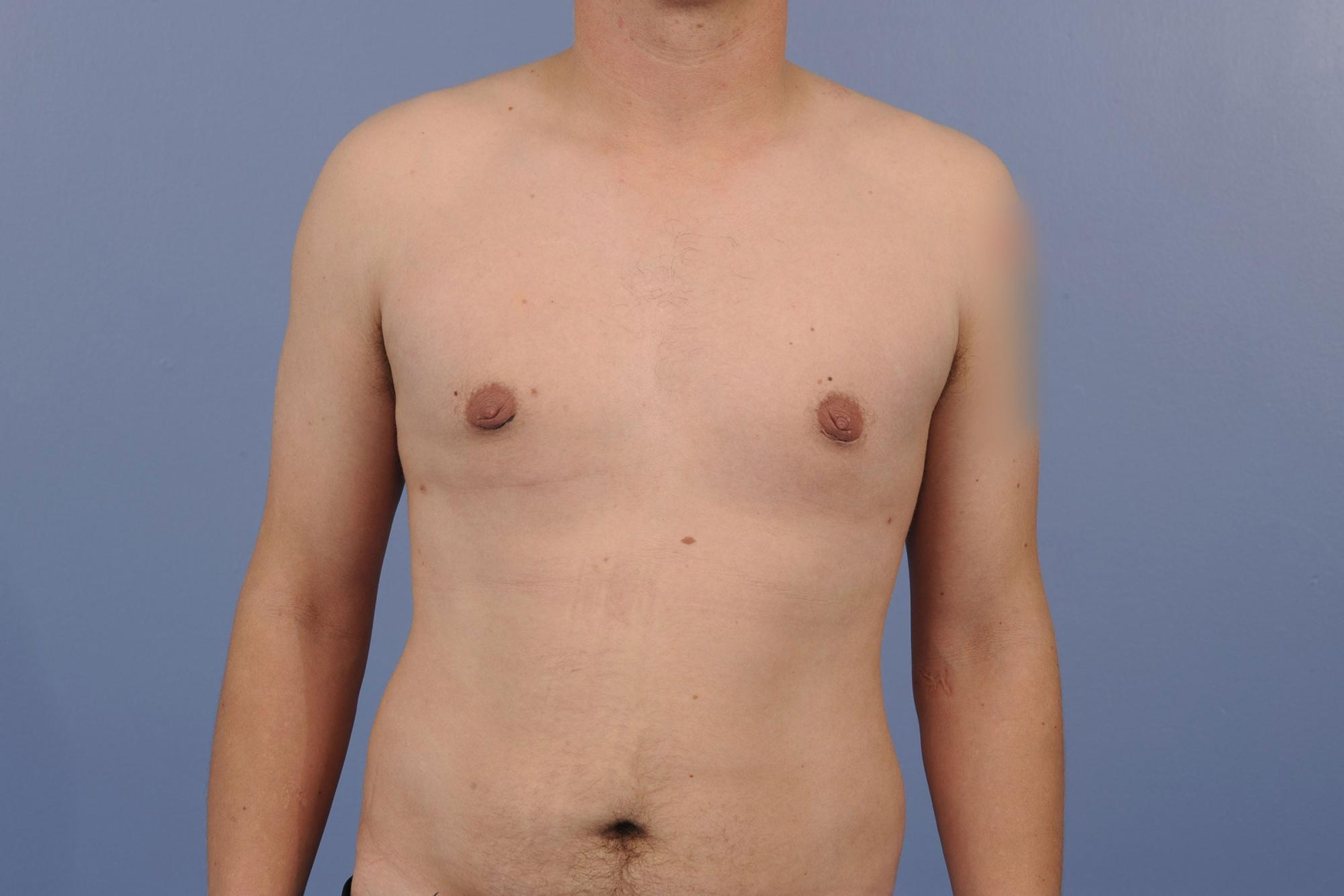 Gynecomastia patient after