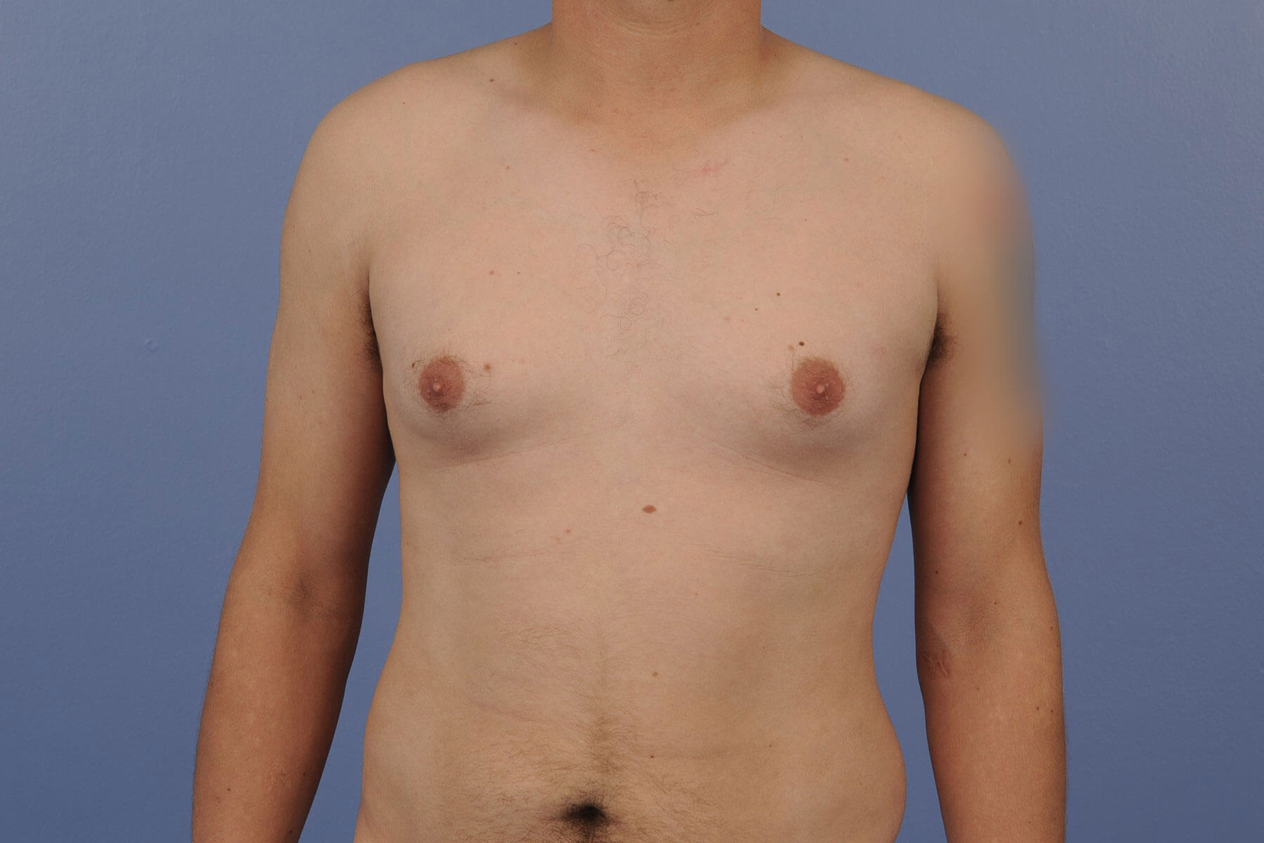 Gynecomastia patient before