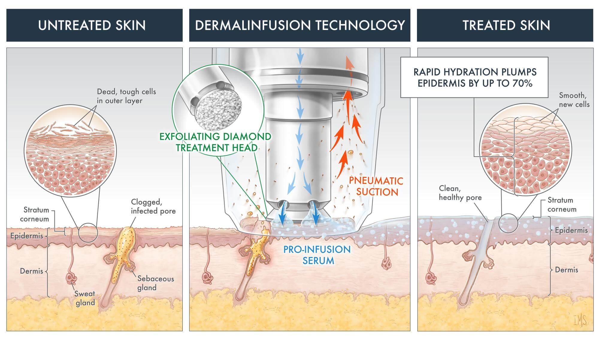 Silk Peel Dermalinfusion