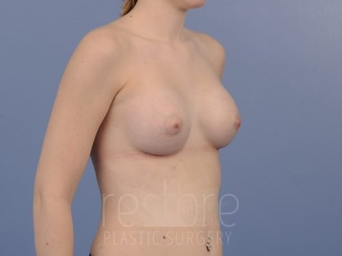 , Breast Augmentation Case #607