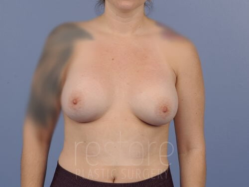 , Breast Augmentation Case #202