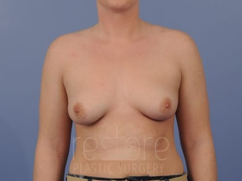 , Breast Augmentation Case #799