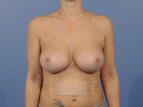 , Breast Augmentation Case #827