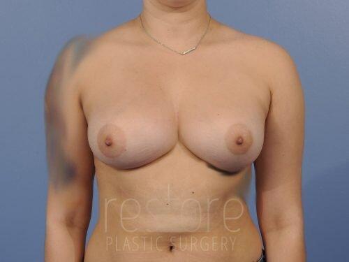 , Breast Augmentation Case #56