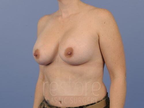 , Breast Augmentation Case #107