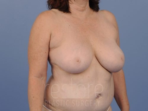 , Breast Reduction Case #790