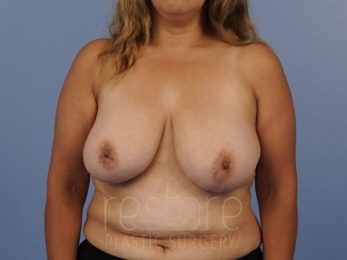 , Breast Reduction Case #606