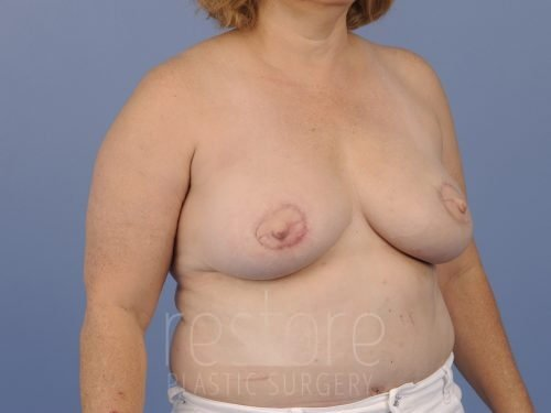 , Breast Reconstruction Case #900