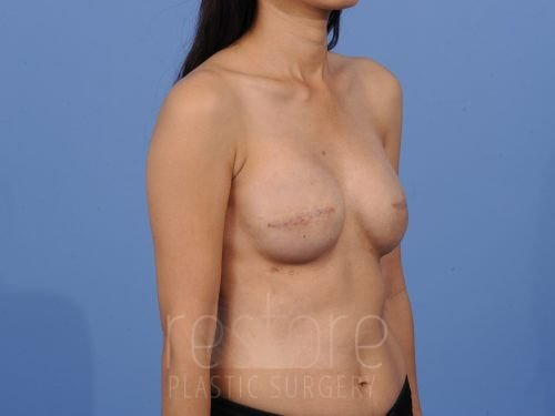 , Breast Reconstruction Case #33