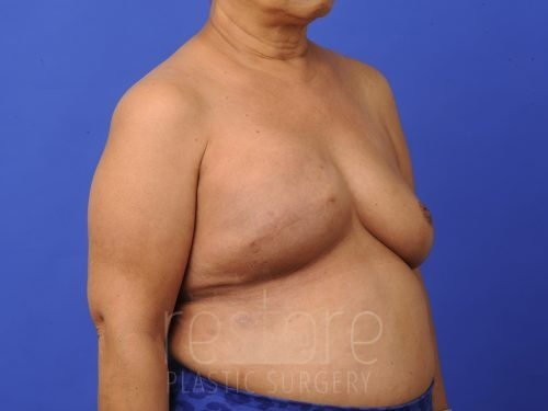 , Breast Reconstruction Case #427