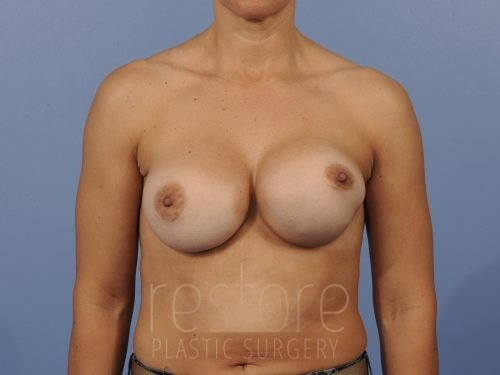 , Breast Revision Case #792