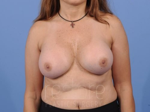 , Breast Revision Case #548