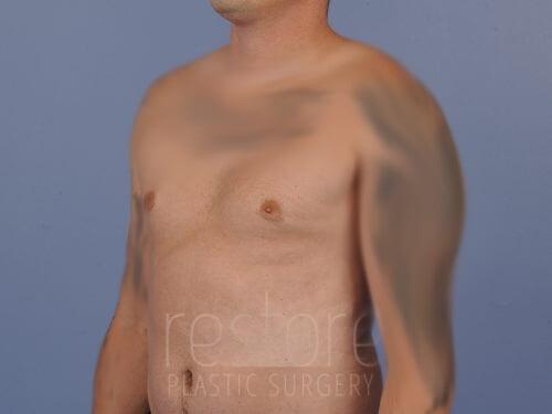 , Gynecomastia Case #125