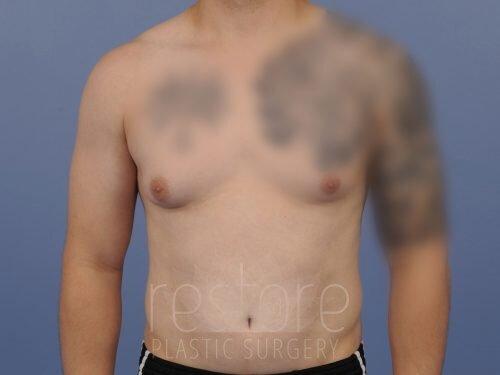 , Gynecomastia Case #25