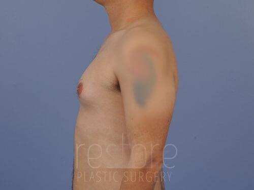 , Gynecomastia Case #823