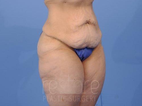 , Tummy Tuck Case #99