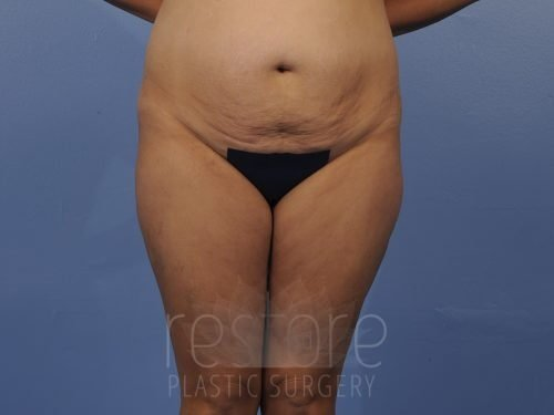 , Tummy Tuck Case #855