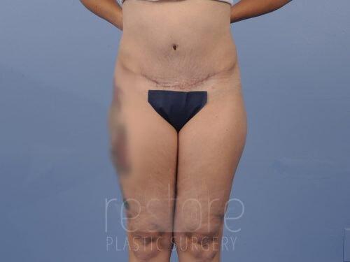 , Tummy Tuck Case #08