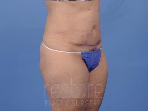 , Tummy Tuck Case #53