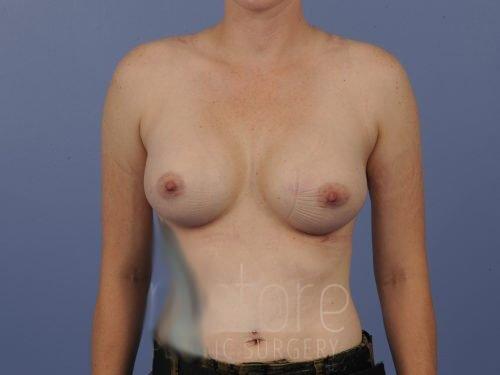 , Breast Augmentation Case #650