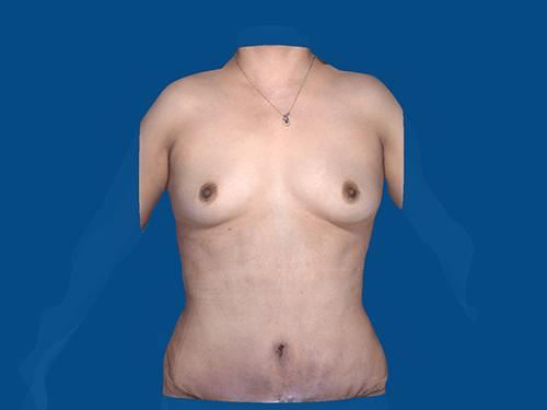 , Tummy Tuck Case #3