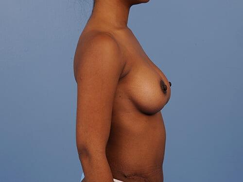 , Breast Augmentation Case #490