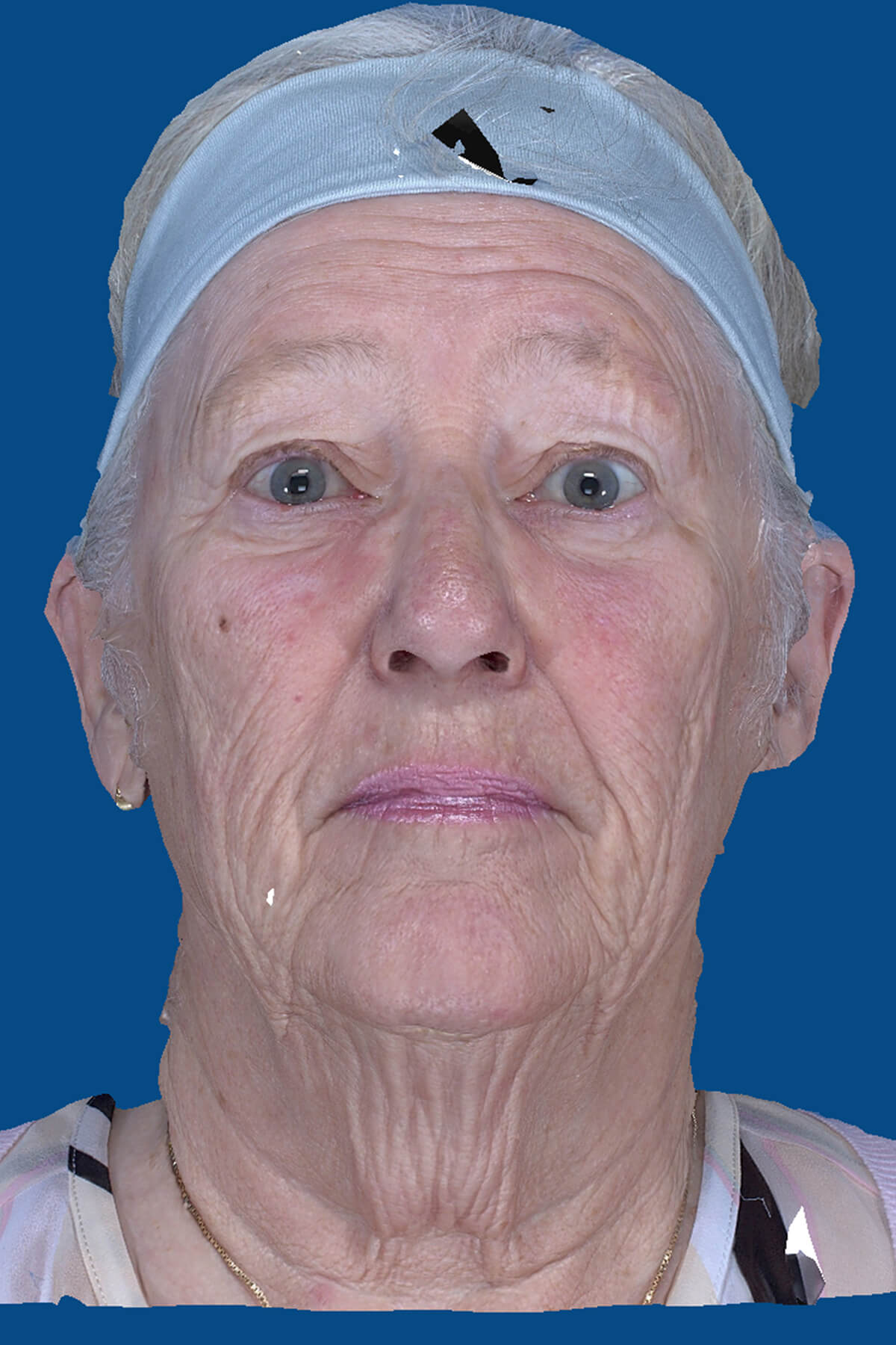 San Diego Facelift Before & After Patient