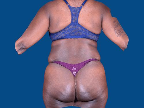 , Liposuction Case #1