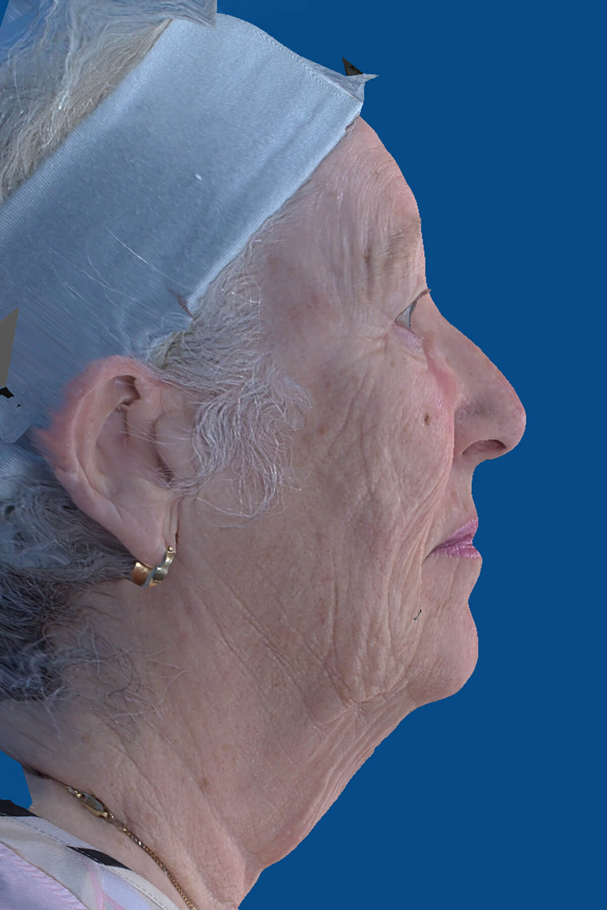 , Facelift Simulation