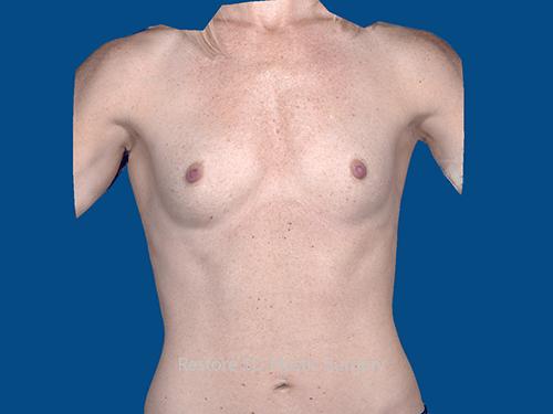 , Breast Augmentation Case #110