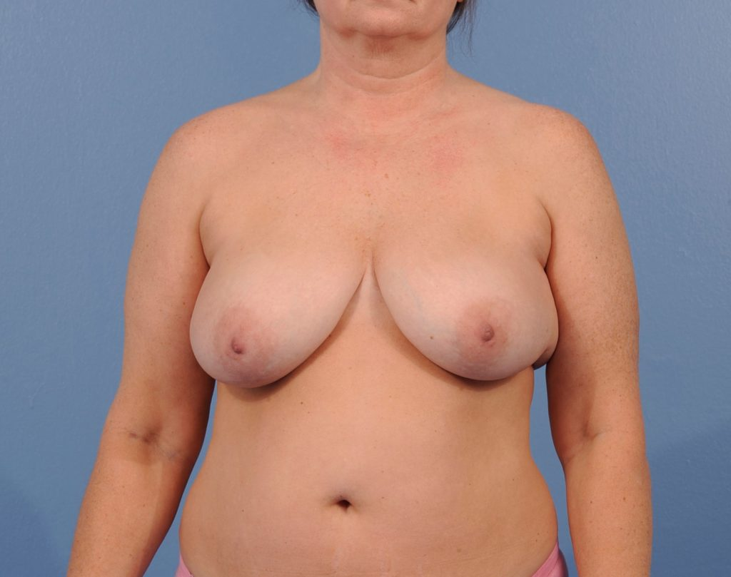 , Breast Reconstruction Case #6