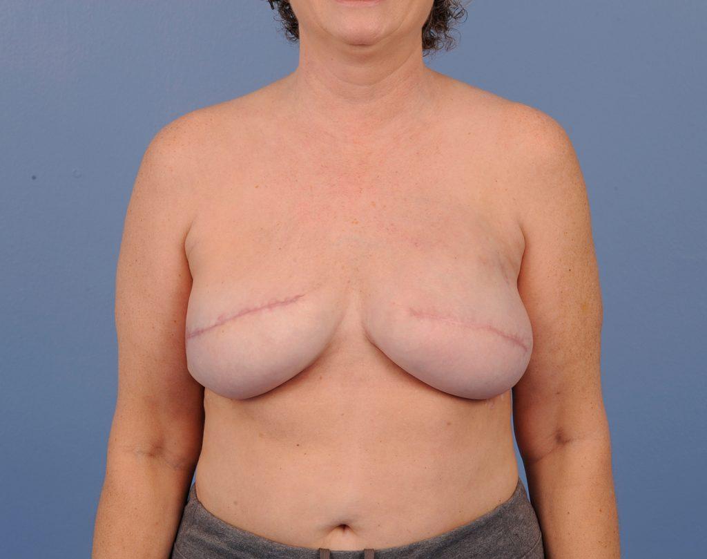 , Breast Reconstruction