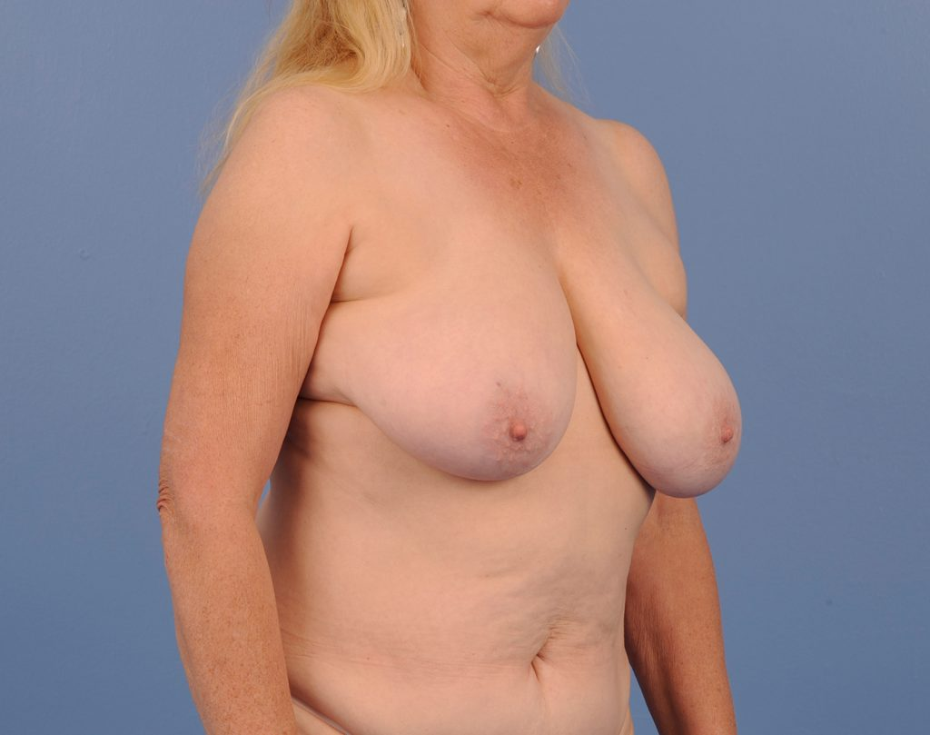 , Breast Reconstruction Case #744