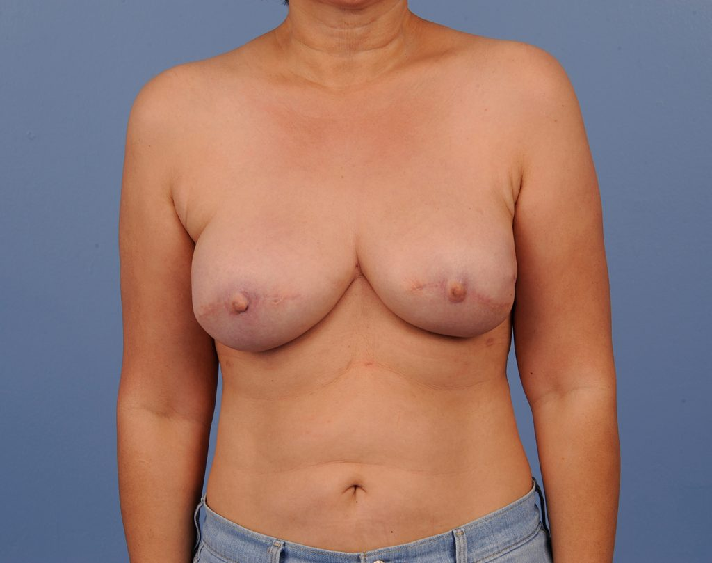, Breast Reconstruction Case #612