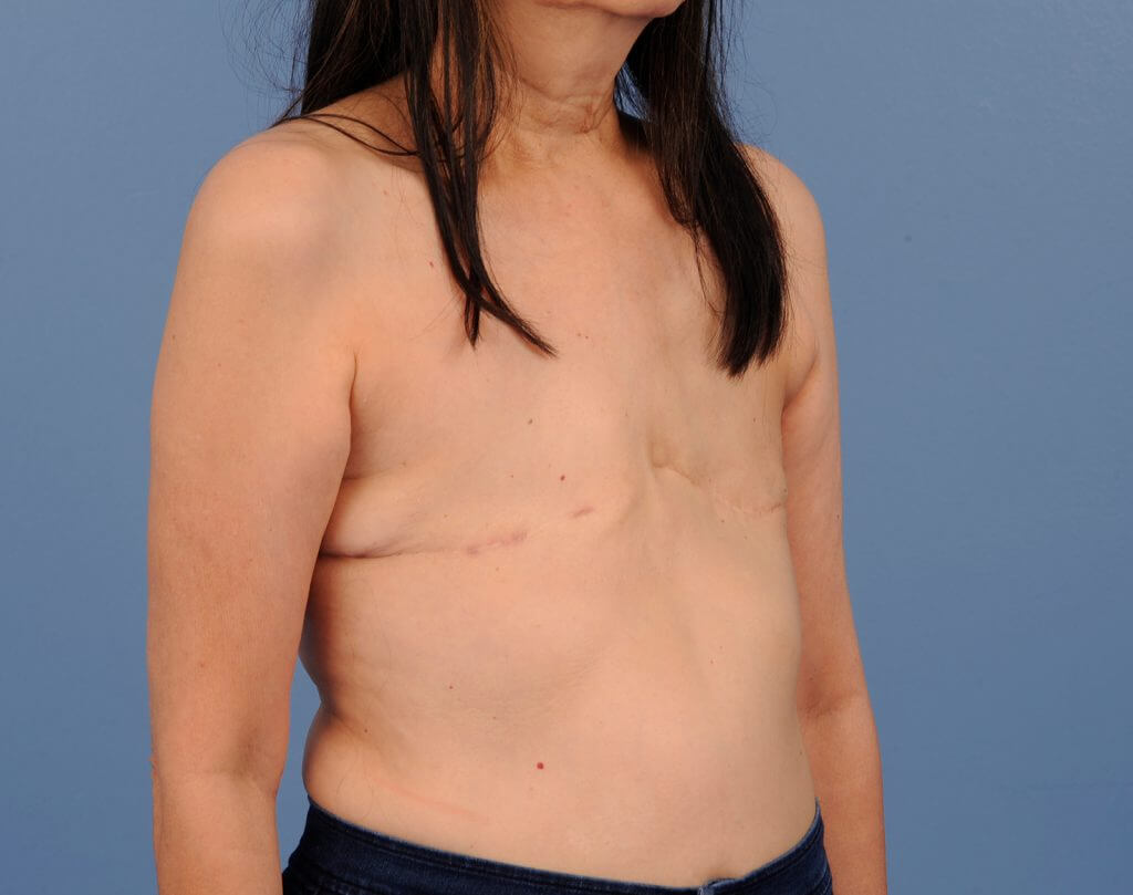 , Breast Reconstruction Case #473