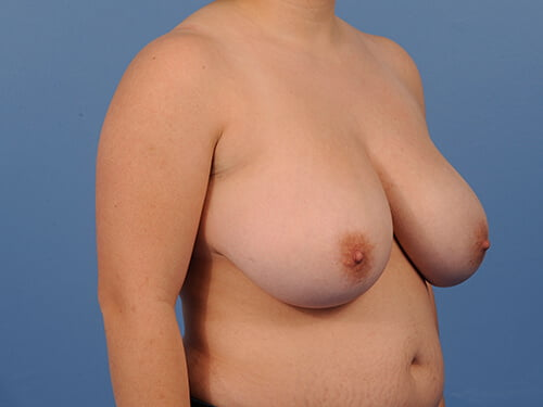 , Breast Reduction Case #145