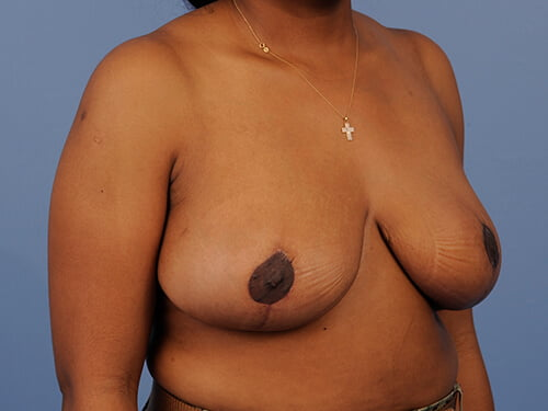 , Breast Reduction Case #933
