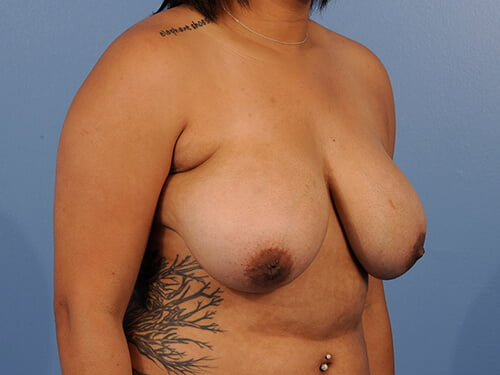 , Breast Reduction Case #487