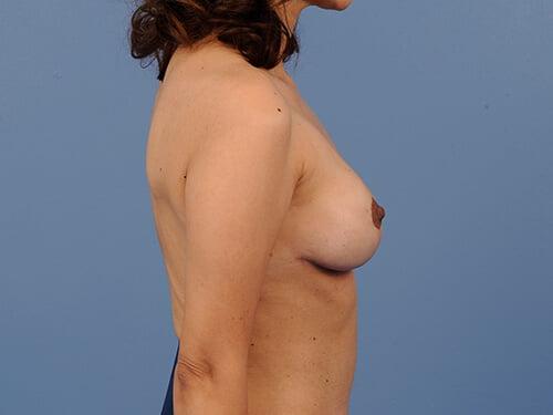 , Breast Augmentation Case #640