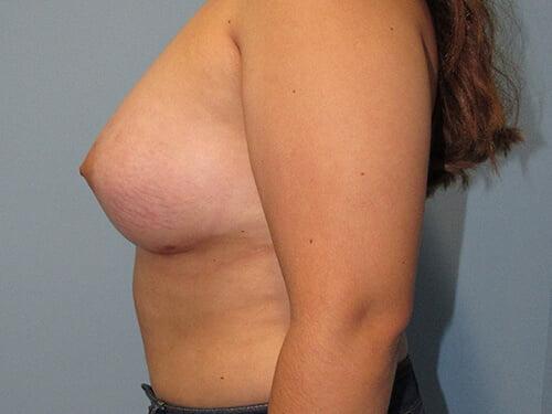 , Breast Augmentation Case #5