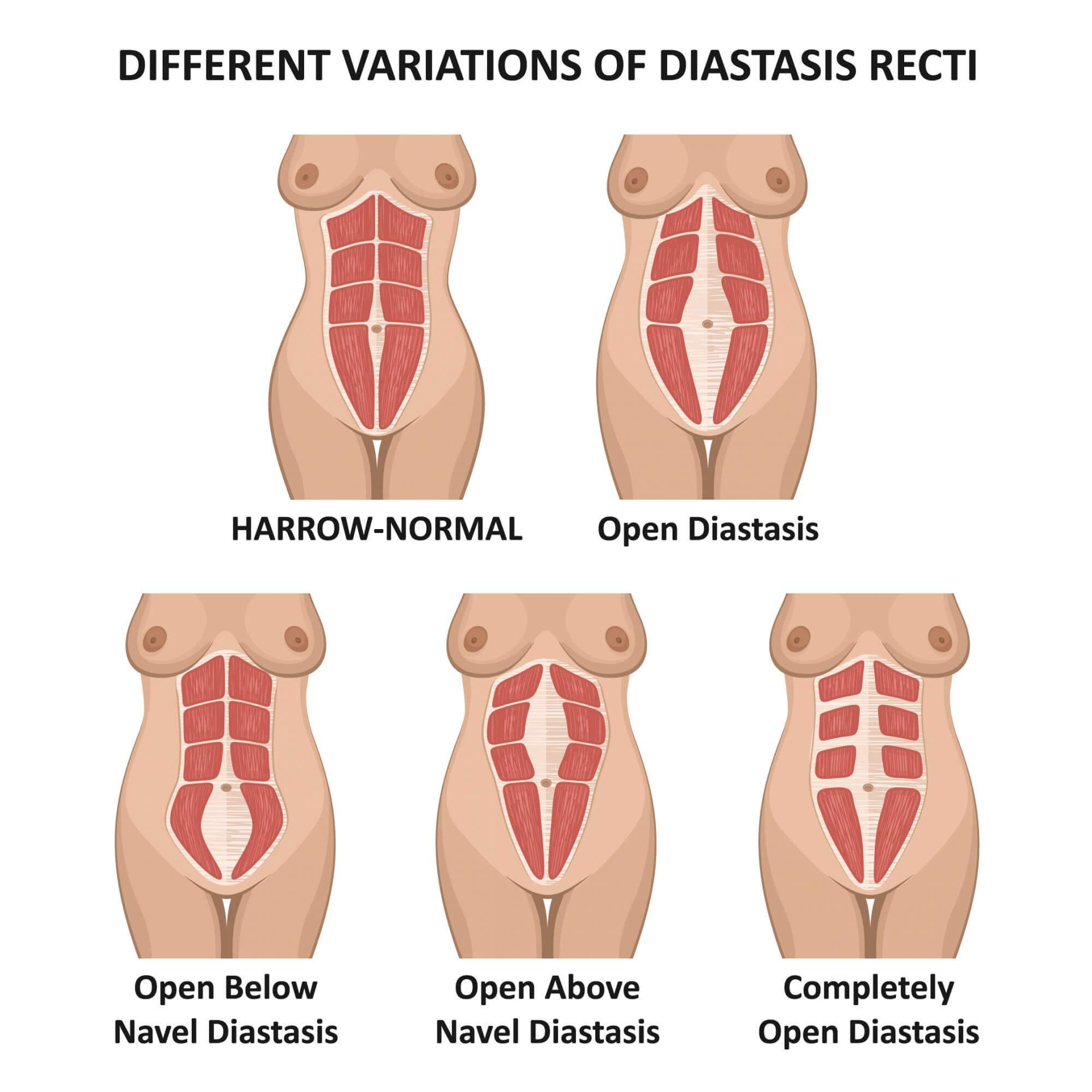 Abdominal Muscle Separation Diastasis Recti San Diego Restore Sd Plastic Surgery