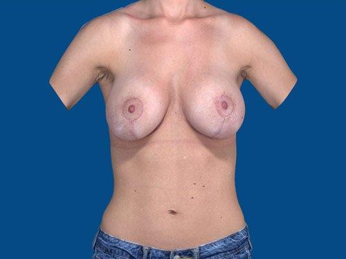 , Breast Augmentation Case #11