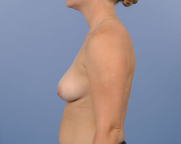 , Breast Augmentation Case #10