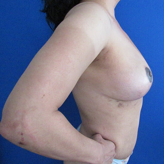 , Breast Implant Removal Case #1