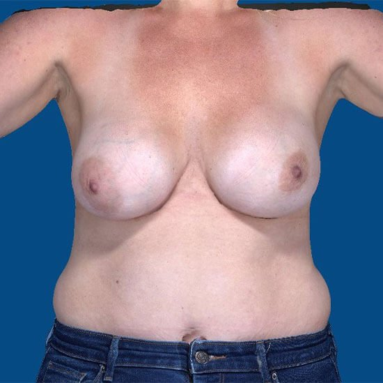 , Breast Implant Removal Case #3