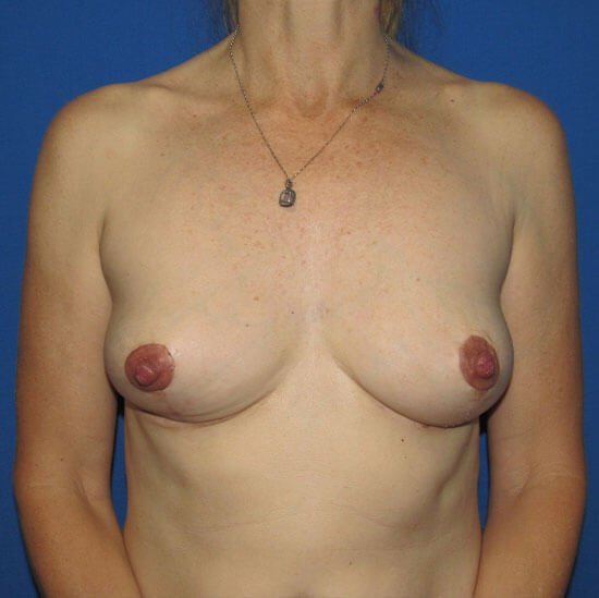 , Breast Implant Removal Case #4