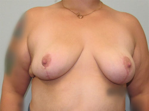 , Breast Reduction Case #7
