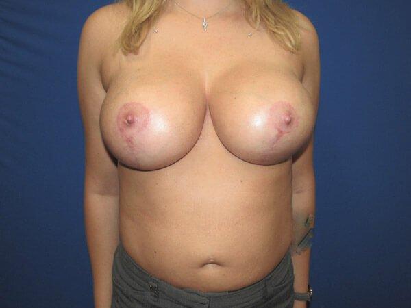 , Breast Augmentation Case #16