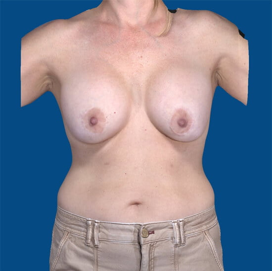, Breast Implant Removal Case #5